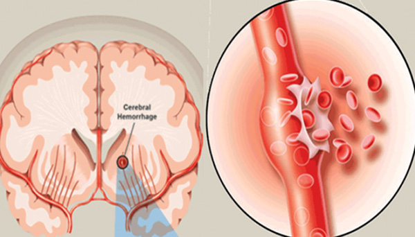 đột quỵ do vỡ mạch máu não