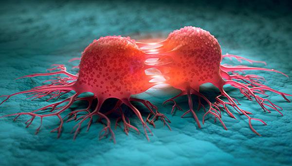 phương pháp điều trị ung thư